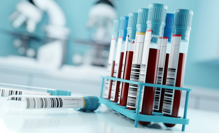 Read more about the article Empresa de cruzeiros marítimos é condenada por exigir teste de HIV para admissão de camareira